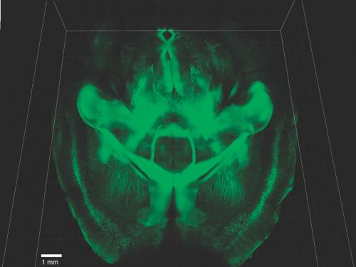 Intact Adult Mouse Brain Imaging - Credit: Chung & Deisseroth, 2013